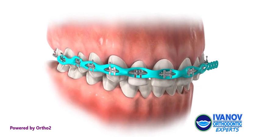 braces colors