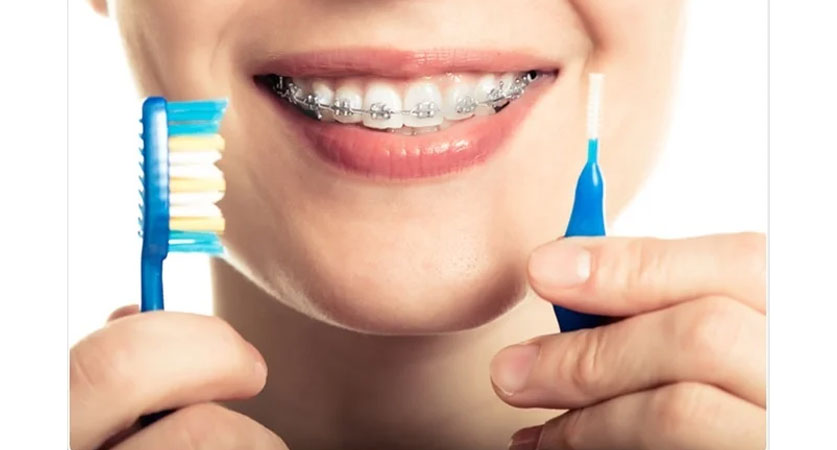 Braces and Their Care